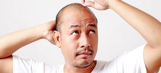 Bei der Auswahl der besten Mittel gegen Haarausfall kommt es vor allem ...