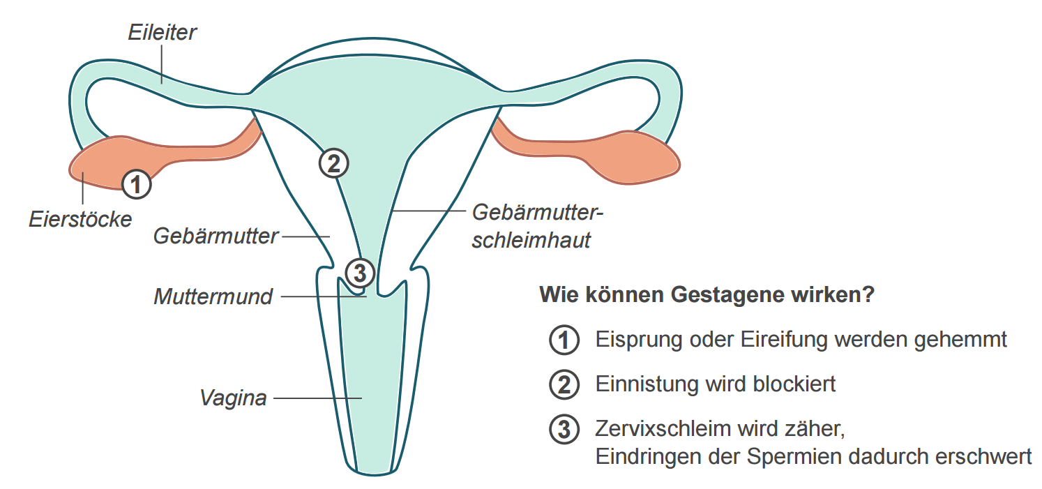 Gebärmutter als Grafik