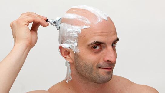 Modetrend Glatze Hilf Männern Mit Dünnem Haar Dred