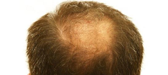 Das Haar der Maske für das Haar die Mythe