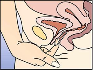 verhütung nach geschlechtsverkehr vagina nach dem geschlechtsverkehr
