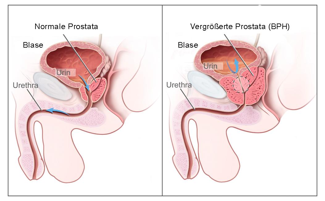 Vergrösserte prostata behandlung wie ein